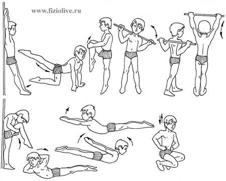 Лечим сколиоз упражнения